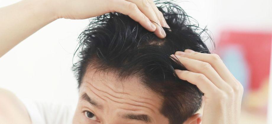 Como lidar com o excesso de oleosidade na pele no verão para não comprometer o quadro de calvície?