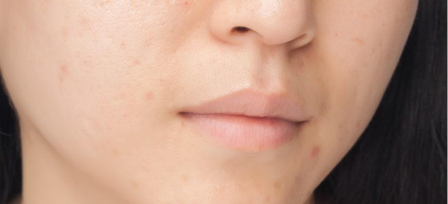 Pele oleosa: como são os cuidados de limpeza para evitar problemas como a acne?
