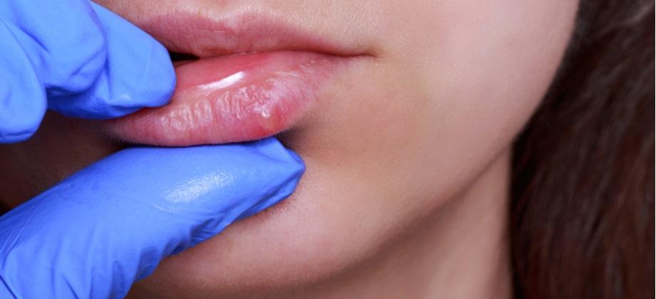 Herpes: uma pessoa sintomática pode desencadear lesões em portadores assintomáticos do vírus?