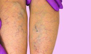 O tratamento medicamentoso contra varizes é eficiente mesmo em quadros severos da doença?