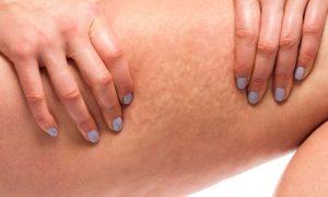 O colágeno pode ajudar no combate à celulite?