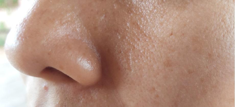Como saber se a sua pele é mista ou oleosa?