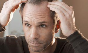 O tratamento da calvície que se manifesta em apenas um local da cabeça é mais fácil?