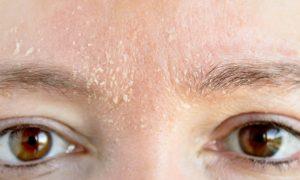 Quais sinais indicam que a barreira de proteção da pele está fragilizada?