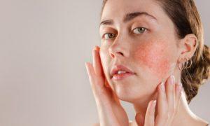 Pele sensível: Quais são as principais consequências de usar produtos não específicos?