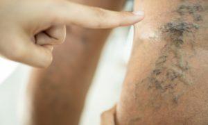Cirurgia de varizes: em quais casos esse procedimento deve ser adotado?