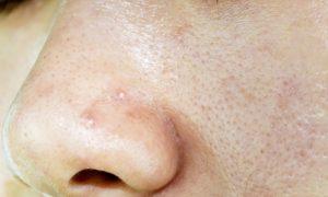 Toda pele acneica é oleosa e toda pele oleosa é acneica?