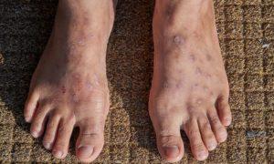 Quem tem varizes pode ter problemas de pele? Por quê?