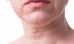 É possível evitar os sinais de idade que surgem no pescoço e no colo?