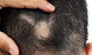 Quais são os principais sintomas de alopecia areata?