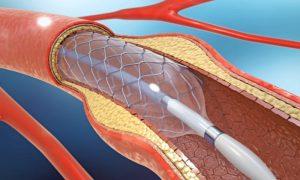 Para que serve a angioplastia? Saiba mais sobre esse procedimento!