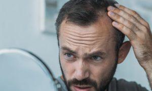 O que pode acontecer ao exagerar na dose do remédio para calvície?