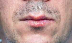 É verdade que quase todo mundo tem herpes?
