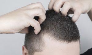 Qual é a relação entre queda de cabelo e dermatite seborreica?