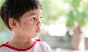 Quais são as principais doenças contraídas na primeira infância?