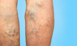 Quais são as consequências da falta de tratamento para varizes?