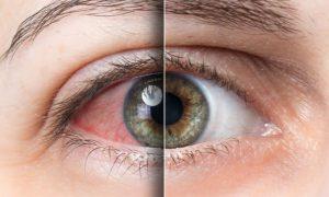 Síndrome do olho seco: descubra o que é e quais os sintomas desse problema