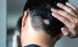 Alopecia areata: como é o tratamento deste tipo de perda de cabelo?
