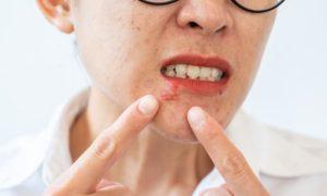 Tratamento para herpes impede que o paciente volte a ter crises?