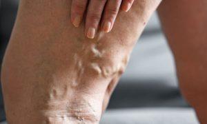 Varicorragia: As varizes podem estourar? Quais são os riscos?