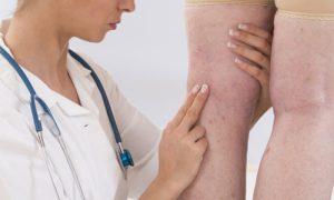 Quais problemas de saúde podem causar varizes?