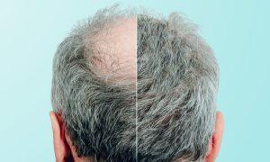 Queda de cabelo excessiva: descubra o que pode estar por trás deste problema