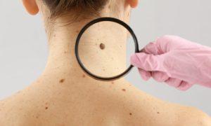 Câncer de pele: saiba quais são os sinais da doença e veja dicas para se prevenir