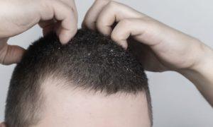 Dermatite seborreica causa queda de cabelo? Entenda!